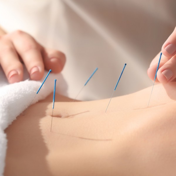 Acupuncture for chronic pain and depression in primary care: a programme of research